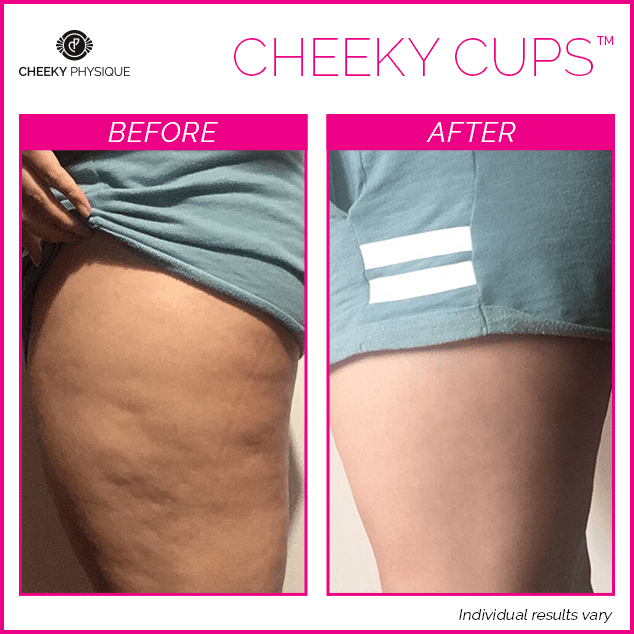 Before and After - Cheeky Cups Body Contouring Kit