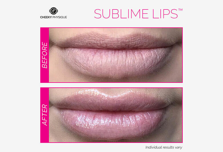 Sublime Lips Before And After