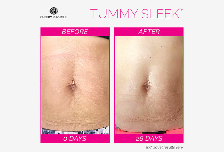 Tummy Sleek Before And After