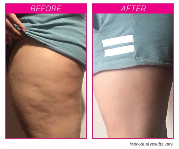 Bye Bye Cellulite Kit before and after